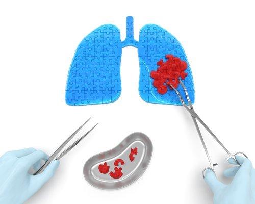 Asportazione del tumore al polmone