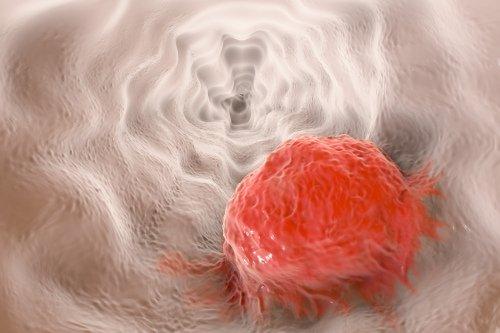 Cancro all'esofago