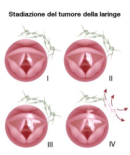 stadiazione del tumore alla laringe