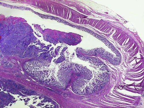 tumore della colecisti al microscopio
