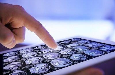 Teleconsulto immagini diagnostiche