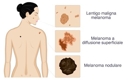 tipologie di melanoma