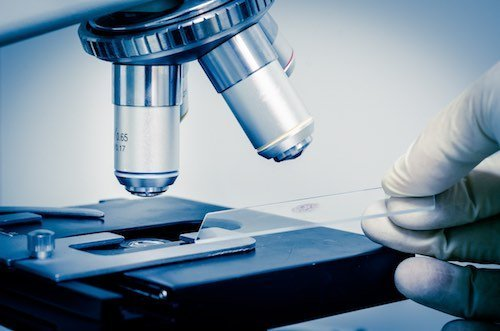 ricerca genetica tumori